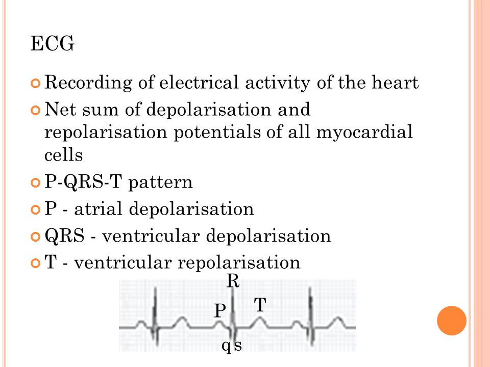 ECG Recording of electrical activity of the heart