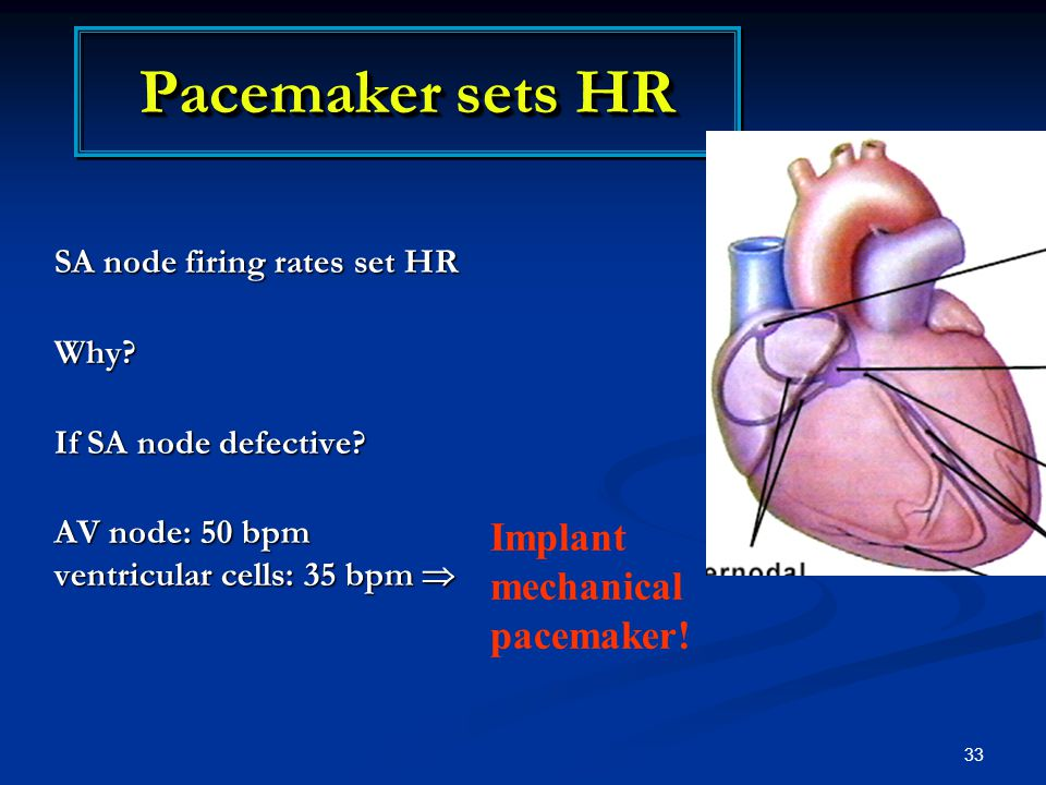 Pacemaker sets HR Implant mechanical pacemaker!