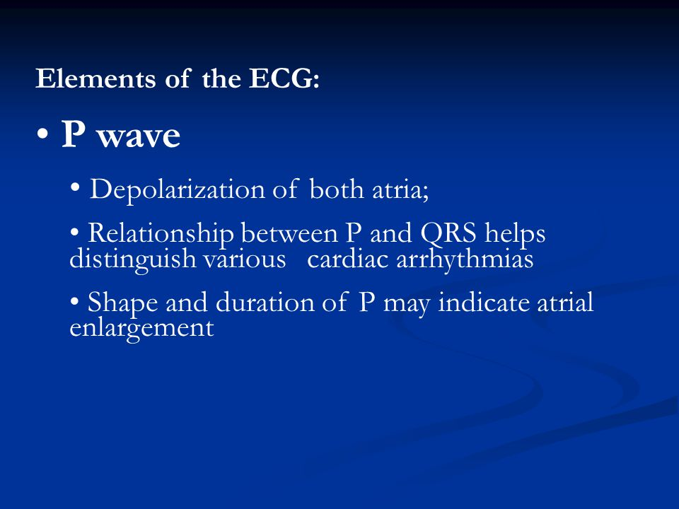 P wave Depolarization of both atria; Elements of the ECG: