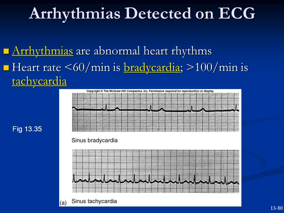 Arrhythmias Detected on ECG