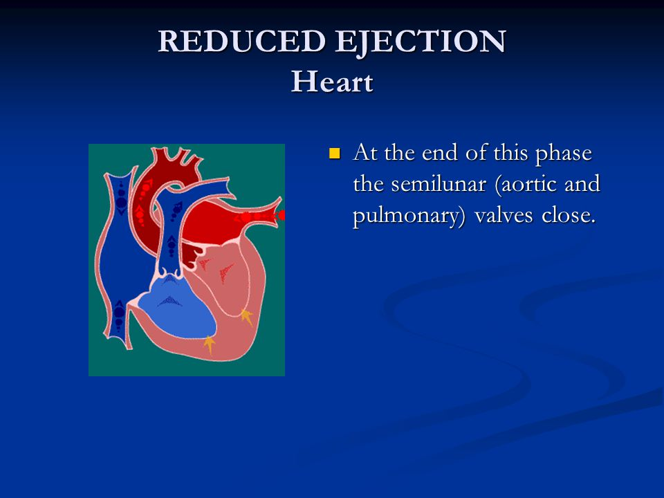 REDUCED EJECTION Heart