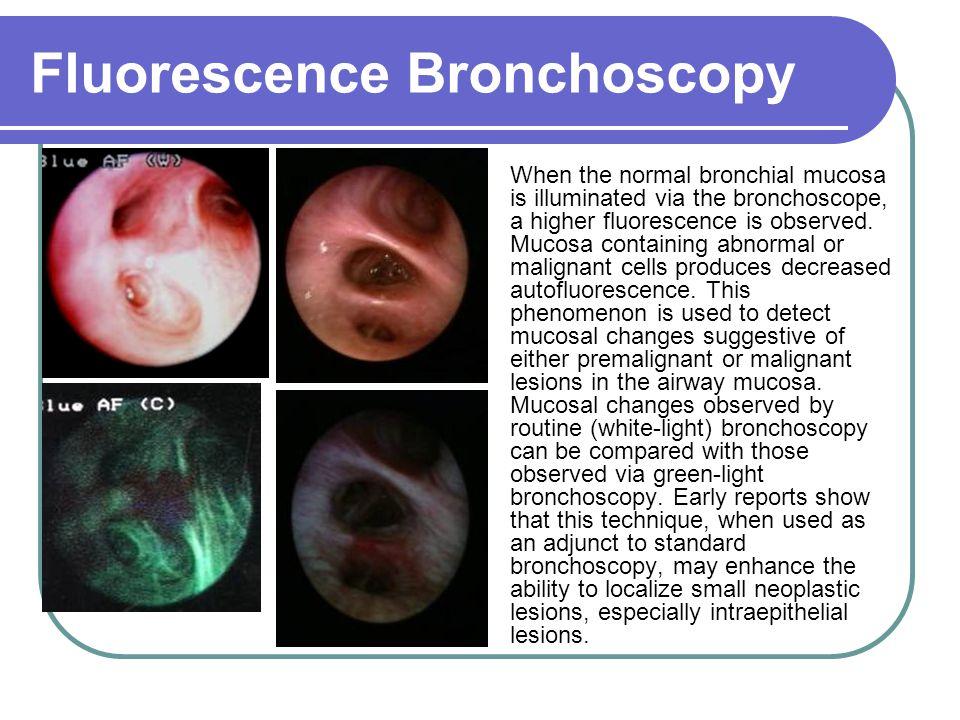 Fluorescence Bronchoscopy