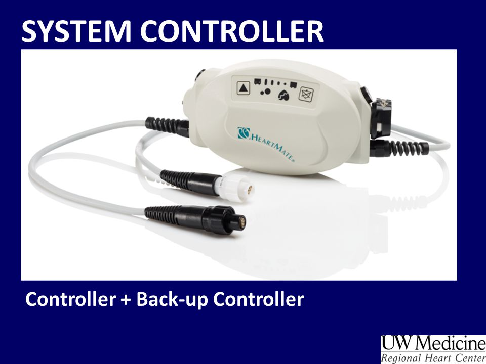 FACE OF SYSTEM CONTROLLER