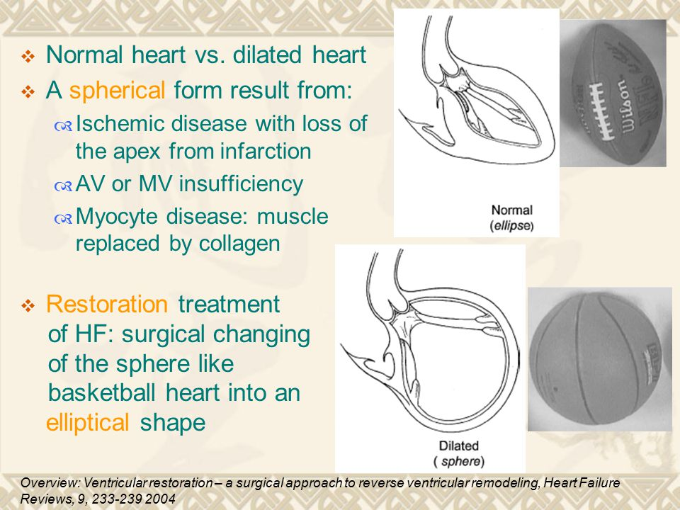 Normal heart vs. dilated heart A spherical form result from: