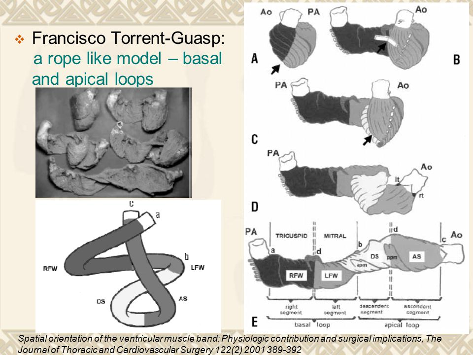 Francisco Torrent-Guasp: a rope like model – basal and apical loops
