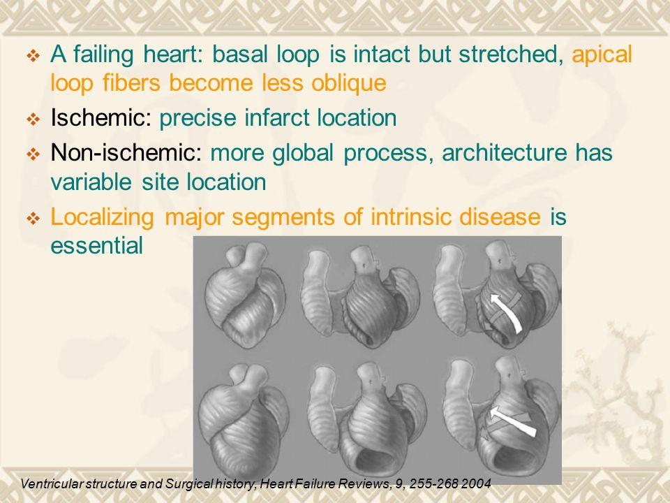 Ischemic: precise infarct location