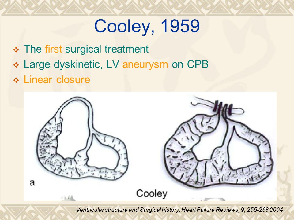 Cooley, 1959 The first surgical treatment
