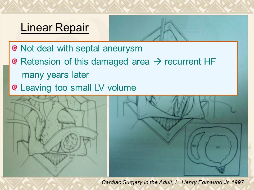 Linear Repair Not deal with septal aneurysm