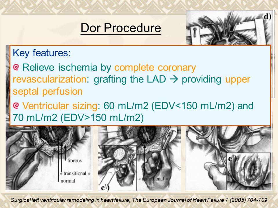 Dor Procedure Key features: