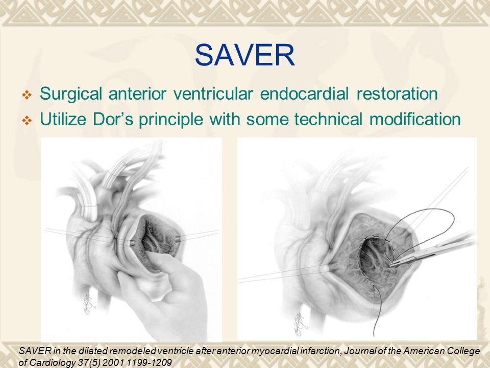 SAVER Surgical anterior ventricular endocardial restoration