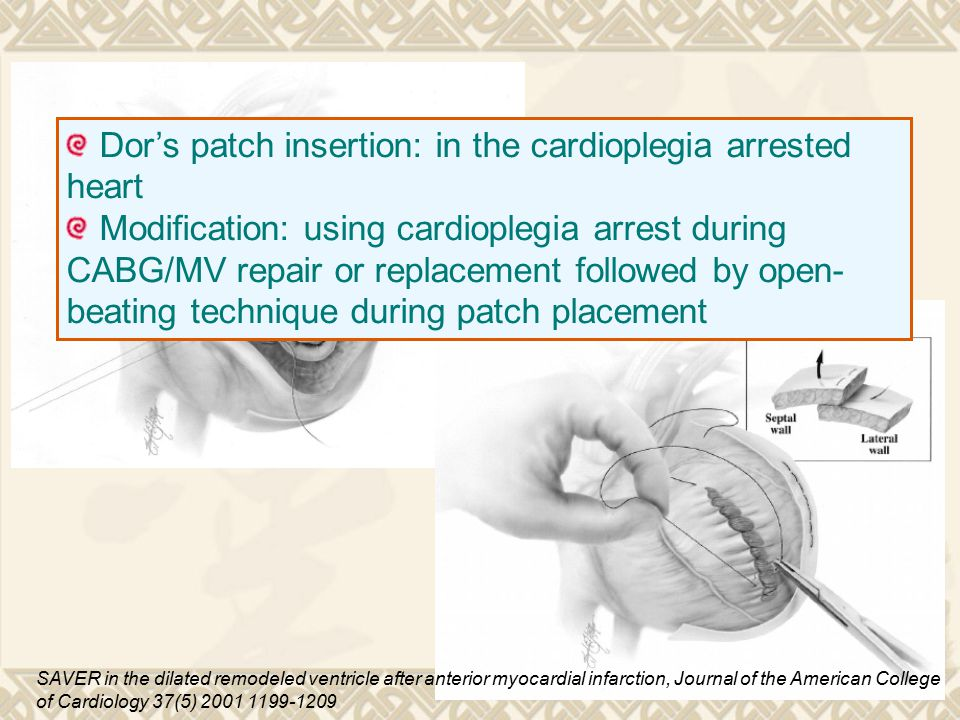 Dor's patch insertion: in the cardioplegia arrested heart