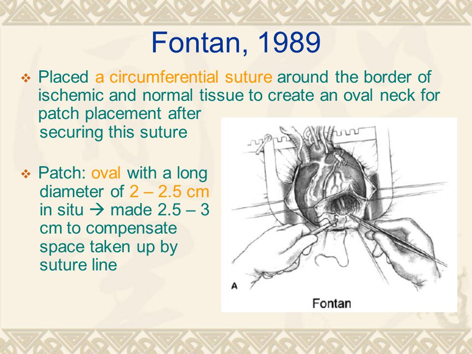 Fontan, 1989 Placed a circumferential suture around the border of ischemic and normal tissue to create an oval neck for patch placement after.