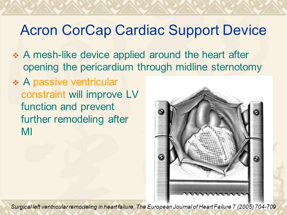 Acron CorCap Cardiac Support Device