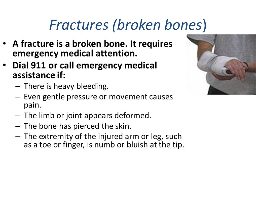 First Aid Outline BONE, BRUISE AND CUT INJURIES Cuts and scrapes