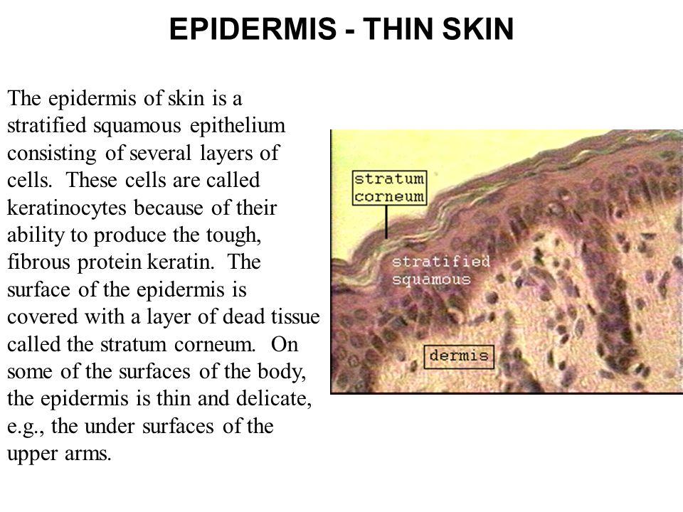EPIDERMIS - THIN SKIN