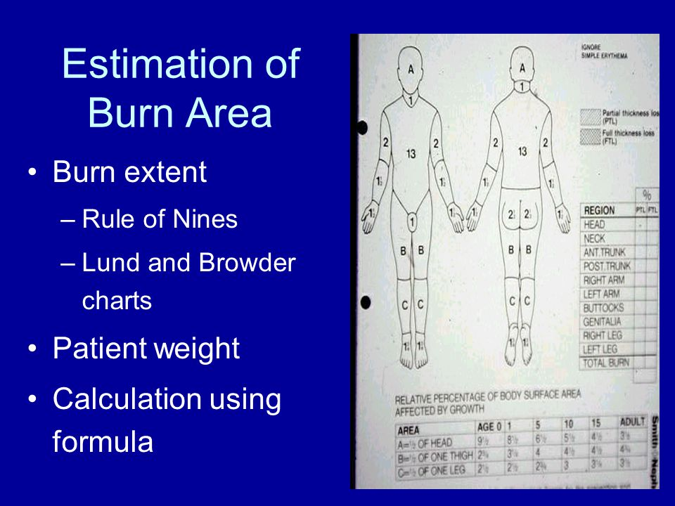 Estimation of Burn Area