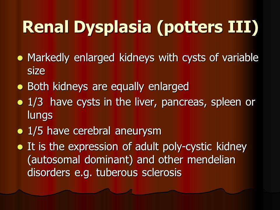 Renal Dysplasia (potters III)