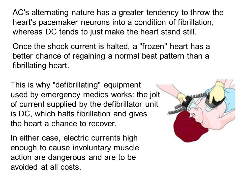 AC s alternating nature has a greater tendency to throw the heart s pacemaker neurons into a condition of fibrillation, whereas DC tends to just make the heart stand still.