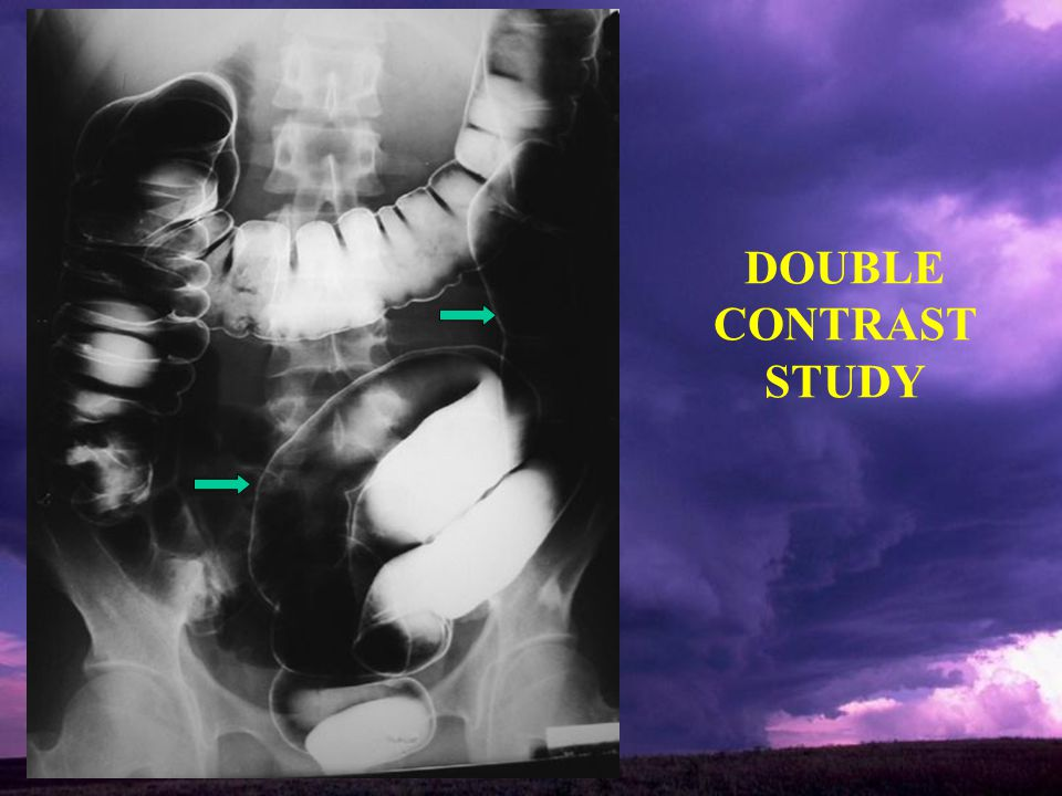 DOUBLE CONTRAST STUDY