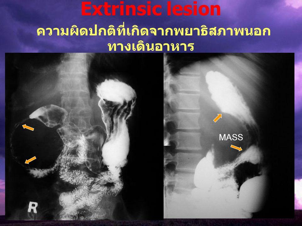 Extrinsic lesion ความผิดปกติที่เกิดจากพยาธิสภาพนอกทางเดินอาหาร
