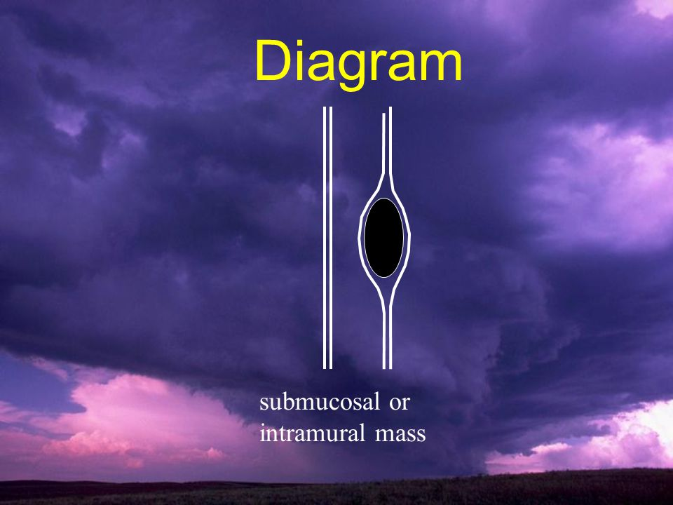 Diagram submucosal or intramural mass
