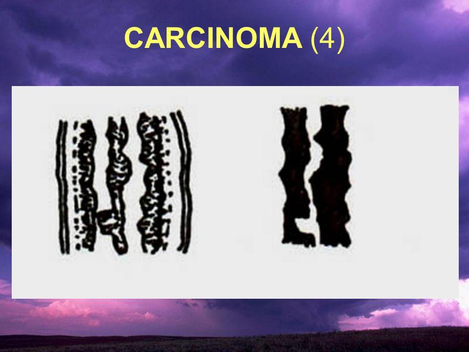 CARCINOMA (4)