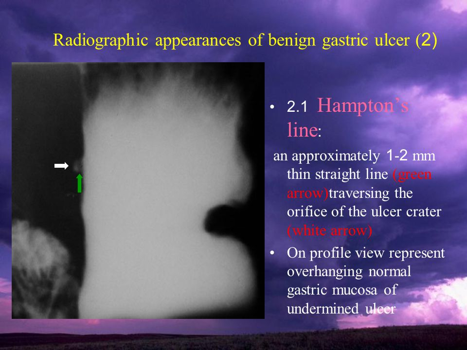 Radiographic appearances of benign gastric ulcer (2)