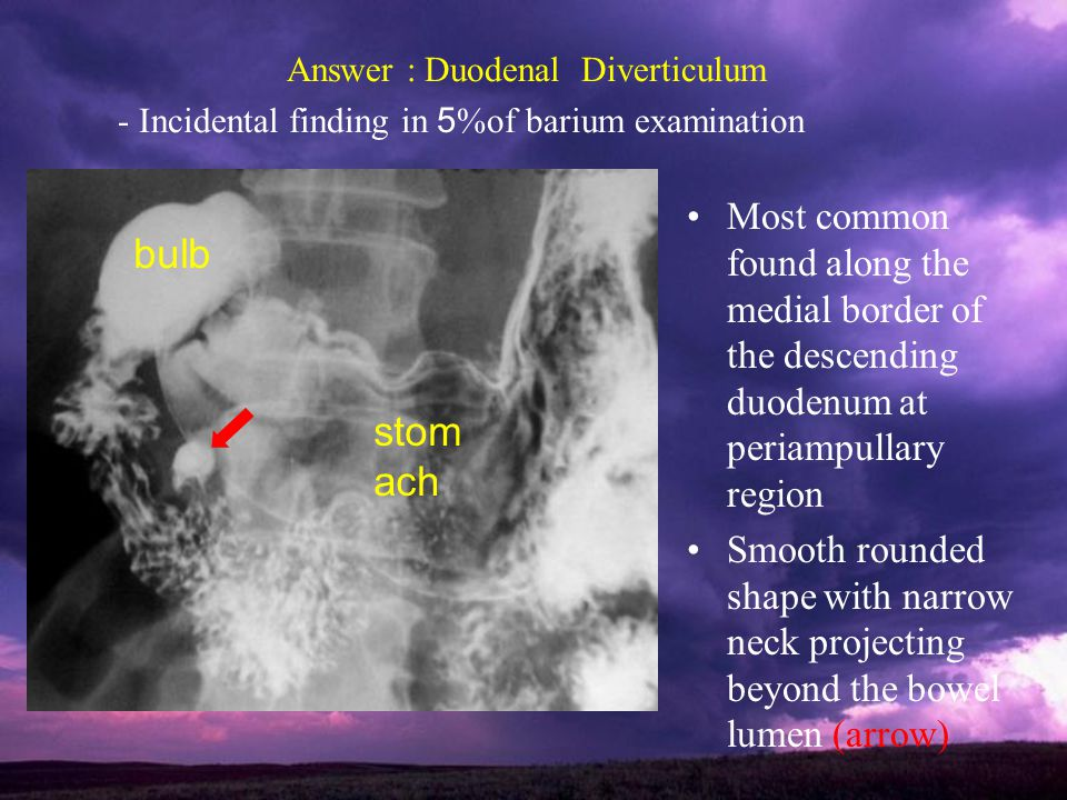 Answer : Duodenal Diverticulum - Incidental finding in 5%of barium examination