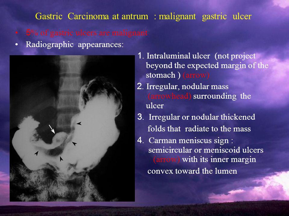Gastric Carcinoma at antrum : malignant gastric ulcer