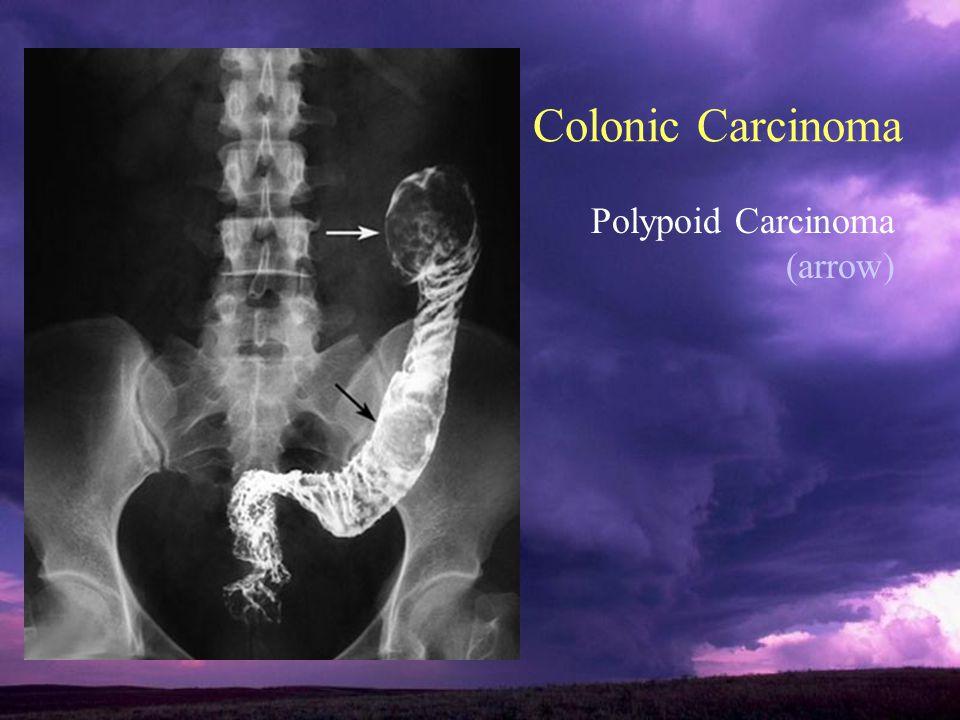Colonic Carcinoma Polypoid Carcinoma (arrow)