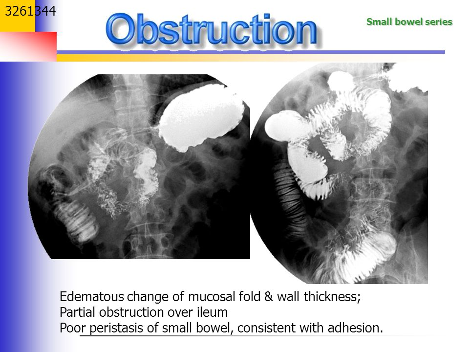Edematous change of mucosal fold & wall thickness;