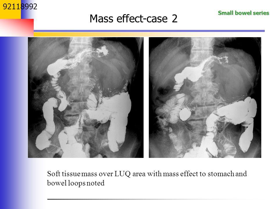 92118992 Mass effect-case 2. 這個病人在左上方處有一明顯density, 胃黏膜被往上頂,腸子被往下推 懷疑有一個mass.