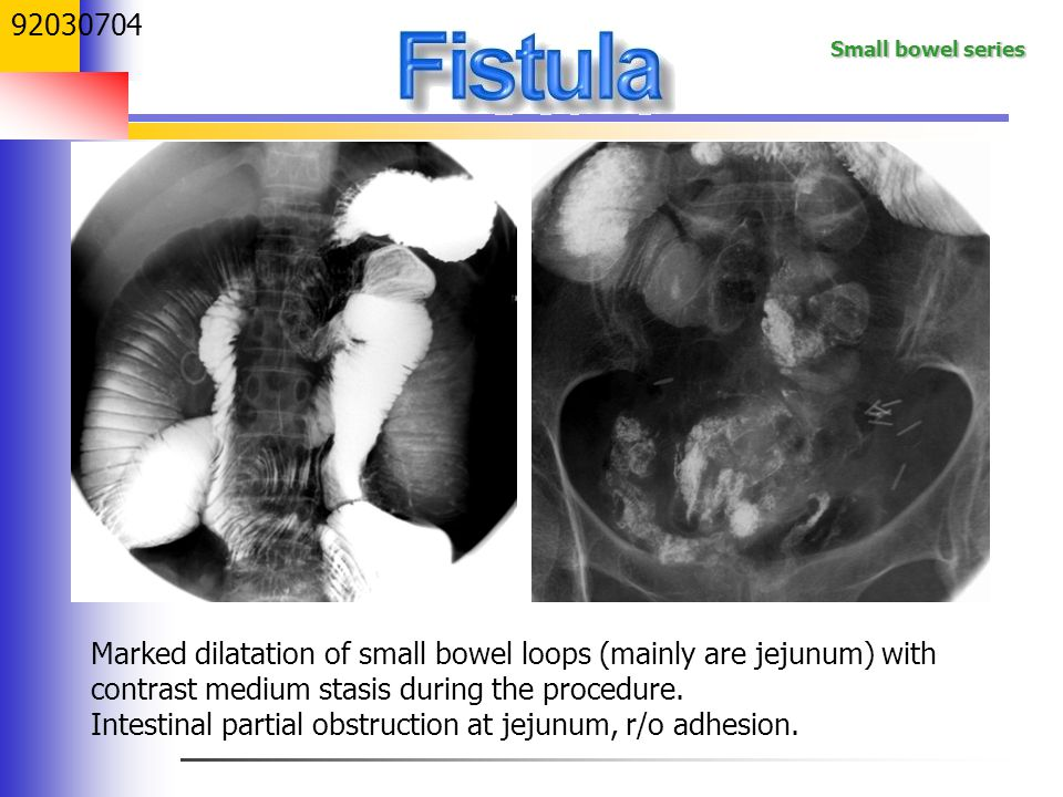 Intestinal partial obstruction at jejunum, r/o adhesion.