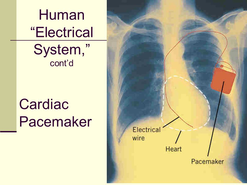 Human Electrical System, cont'd