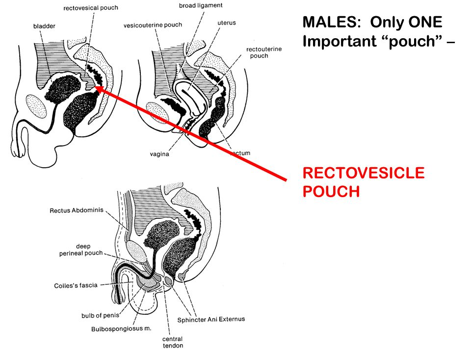 MALES: Only ONE Important pouch –