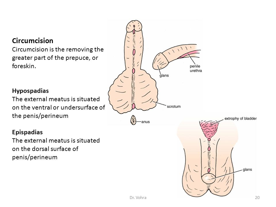 Circumcision Circumcision is the removing the greater part of the prepuce, or foreskin. Hypospadias.