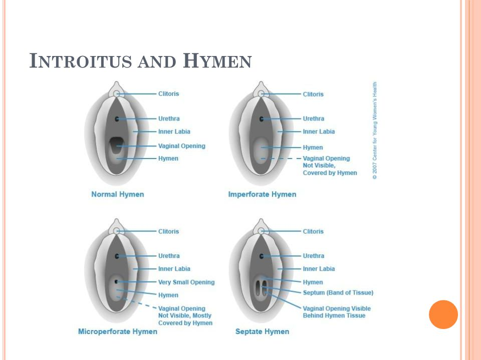 Introitus and Hymen