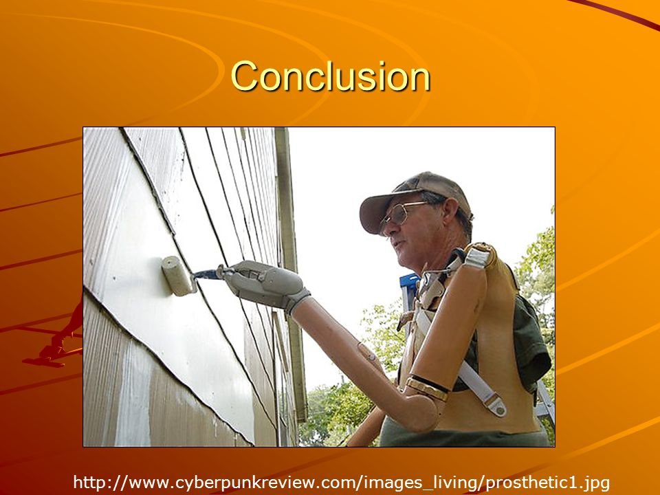 Conclusion http://www.cyberpunkreview.com/images_living/prosthetic1.jpg