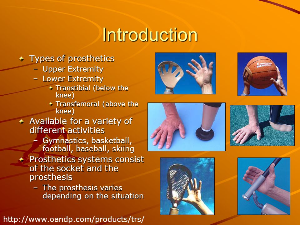 Introduction Types of prosthetics
