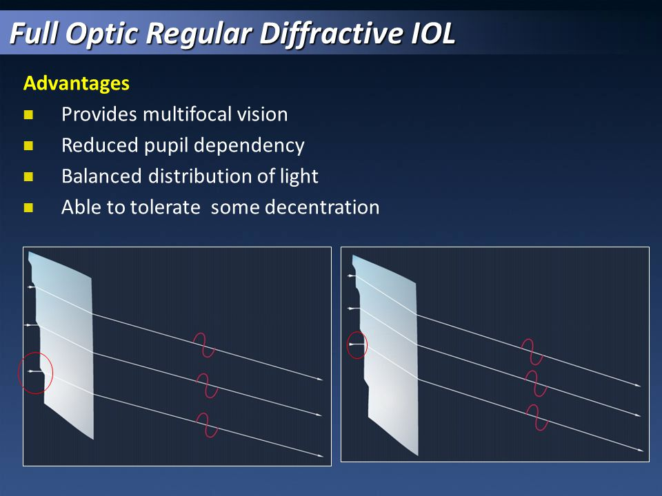 Full Optic Regular Diffractive IOL