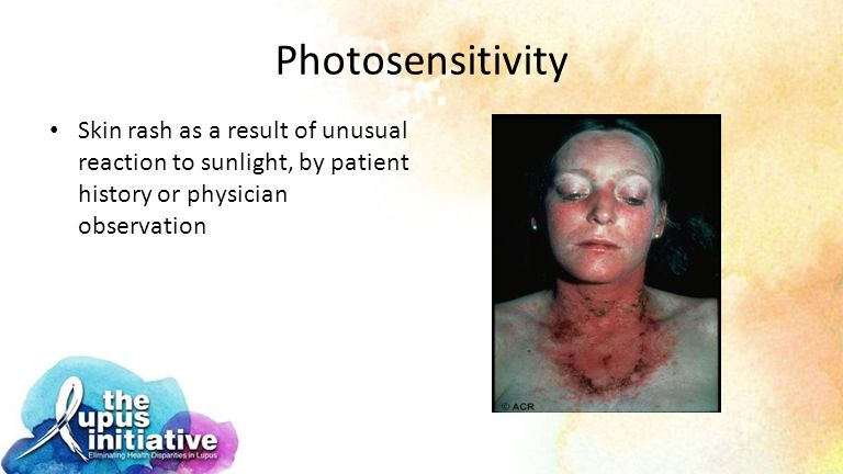 Photosensitivity Skin rash as a result of unusual reaction to sunlight, by patient history or physician observation.