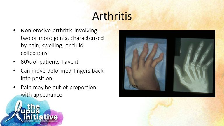 Arthritis Non-erosive arthritis involving two or more joints, characterized by pain, swelling, or fluid collections.