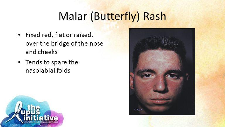 Malar (Butterfly) Rash