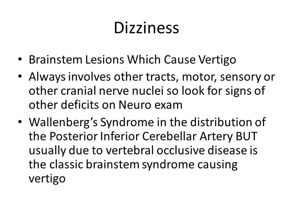 Dizziness Brainstem Lesions Which Cause Vertigo
