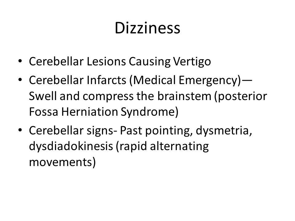 Dizziness Cerebellar Lesions Causing Vertigo