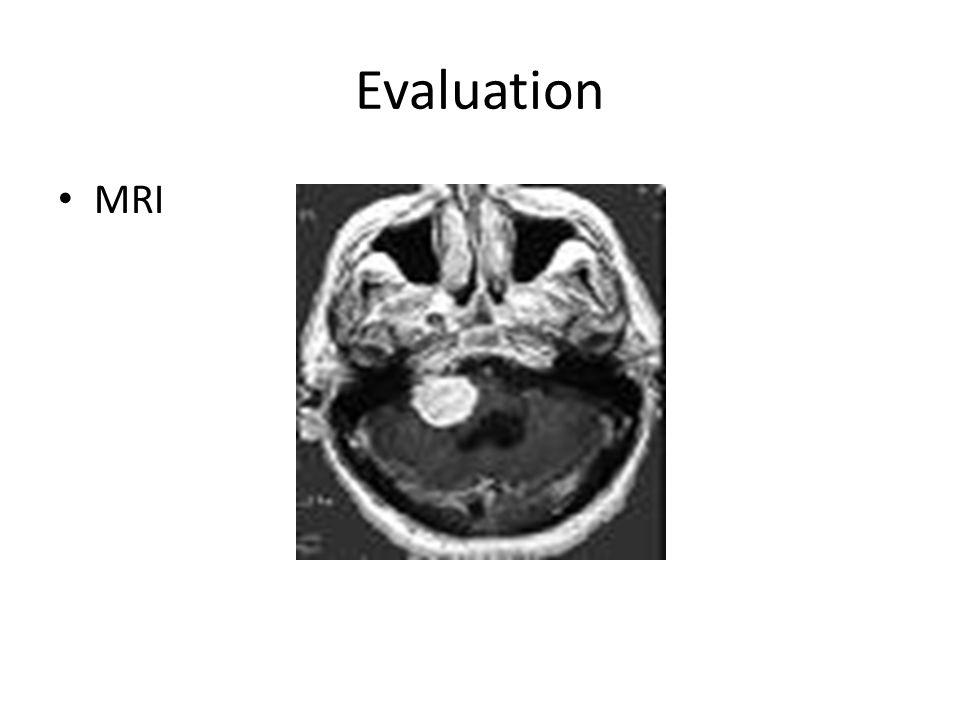 Evaluation MRI 41