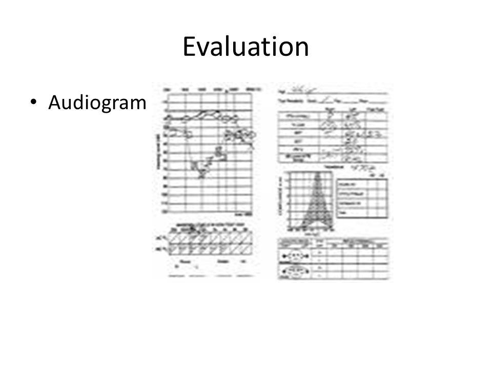 Evaluation Audiogram