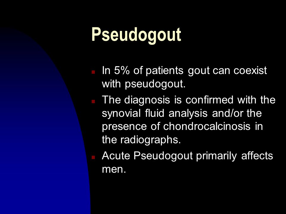 Pseudogout In 5% of patients gout can coexist with pseudogout.