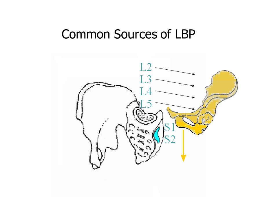Common Sources of LBP