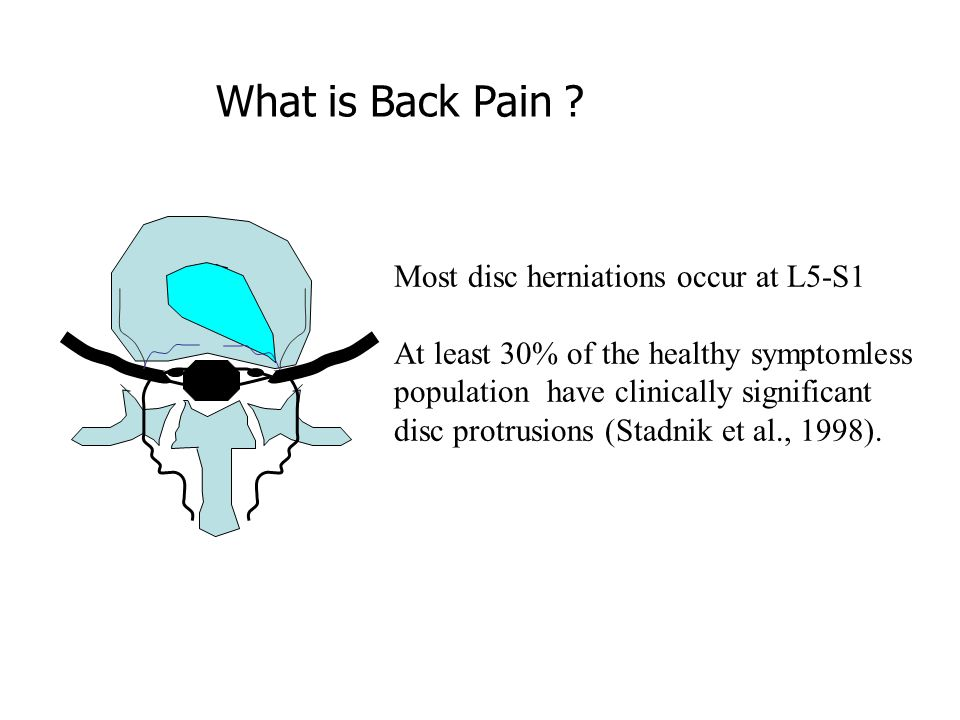 What is Back Pain Most disc herniations occur at L5-S1